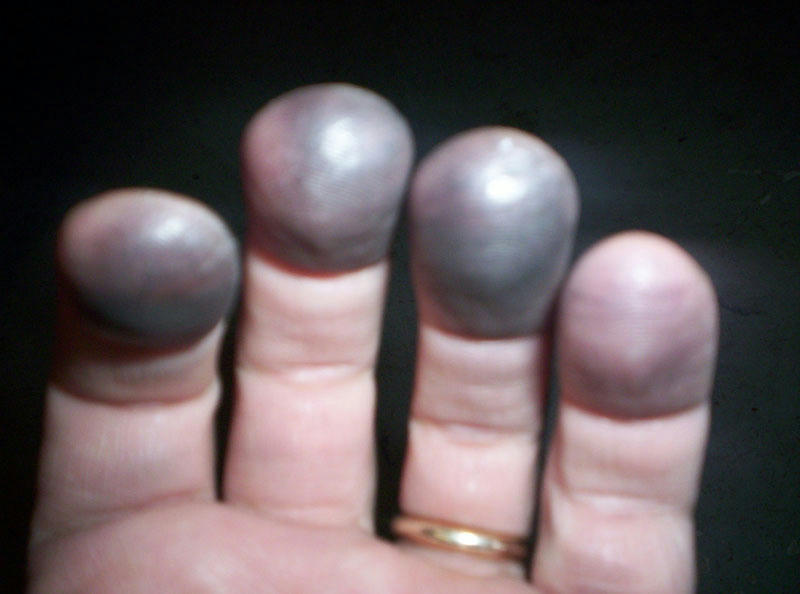 how to build calluses on fingers for guitar